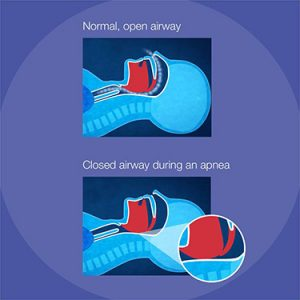 Illustration depicting a normal airway vs closed airway